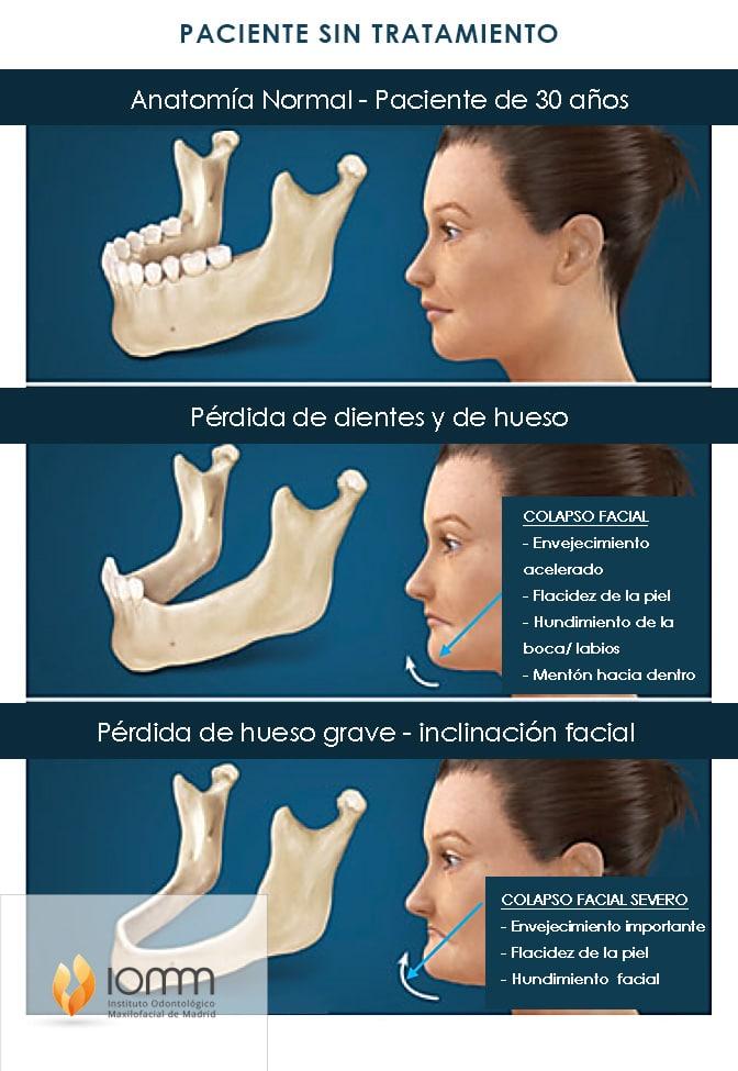 Tratamiento de implantes dentales sin hueso