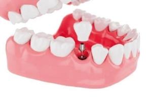 Implantes dentales unitarios en Valladolid