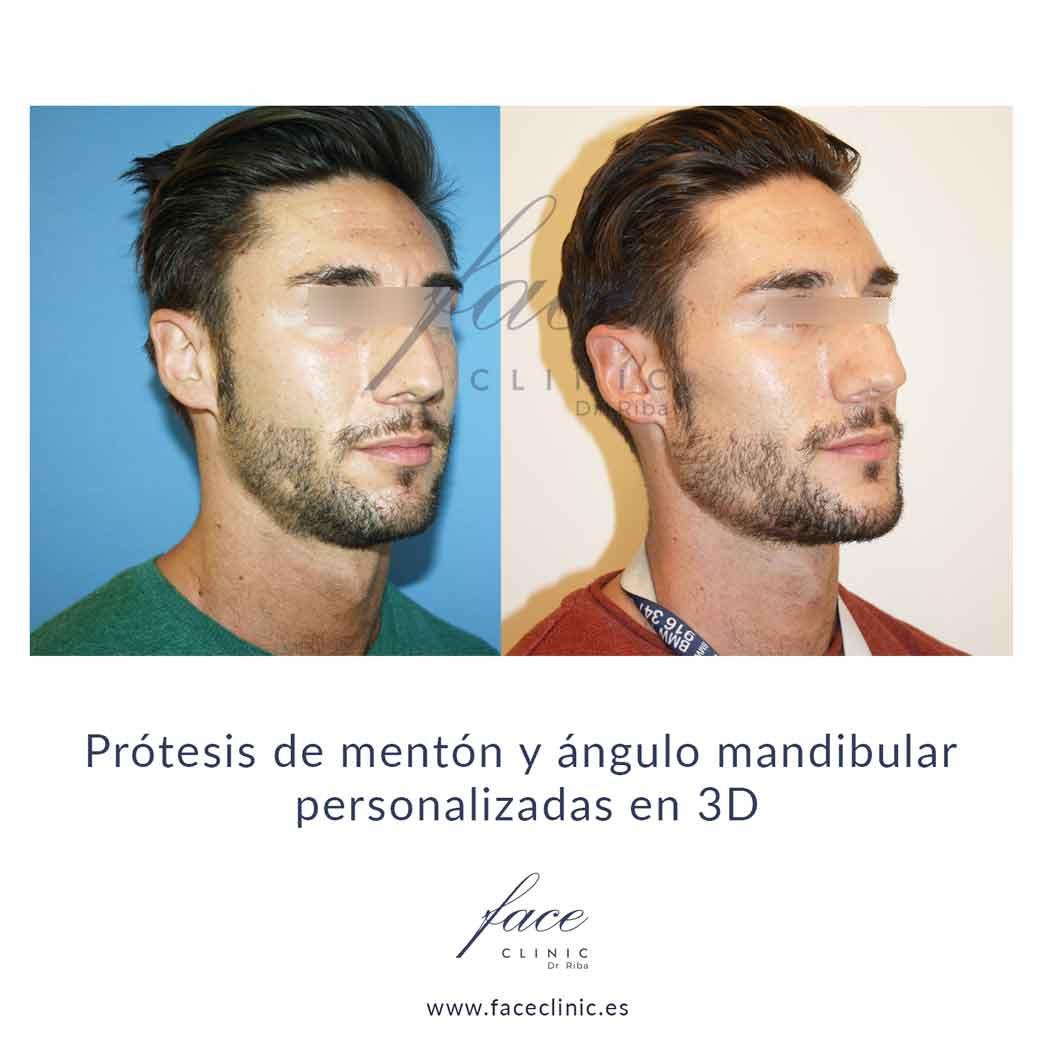 Implantes faciales antes y después Madrid