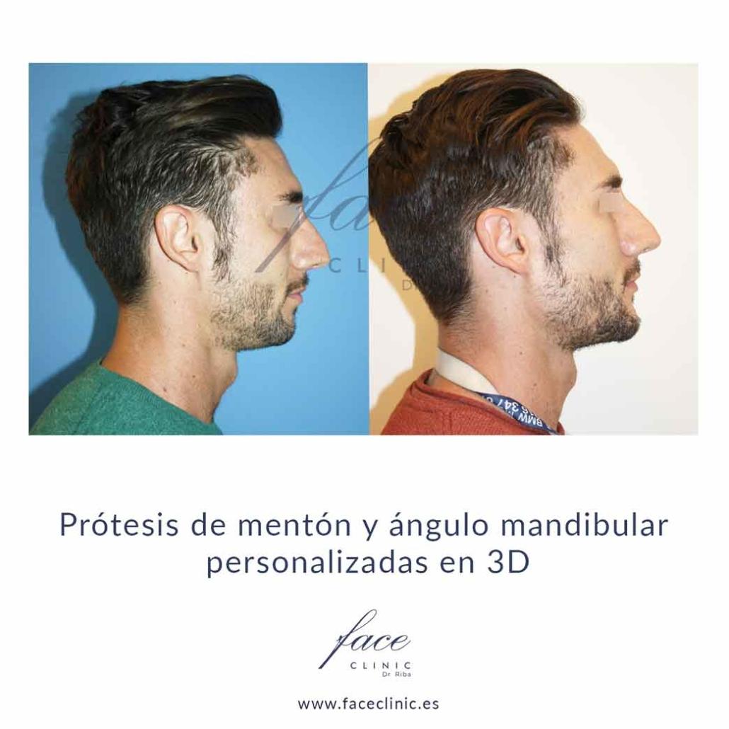 Implantes faciales caso real Madrid