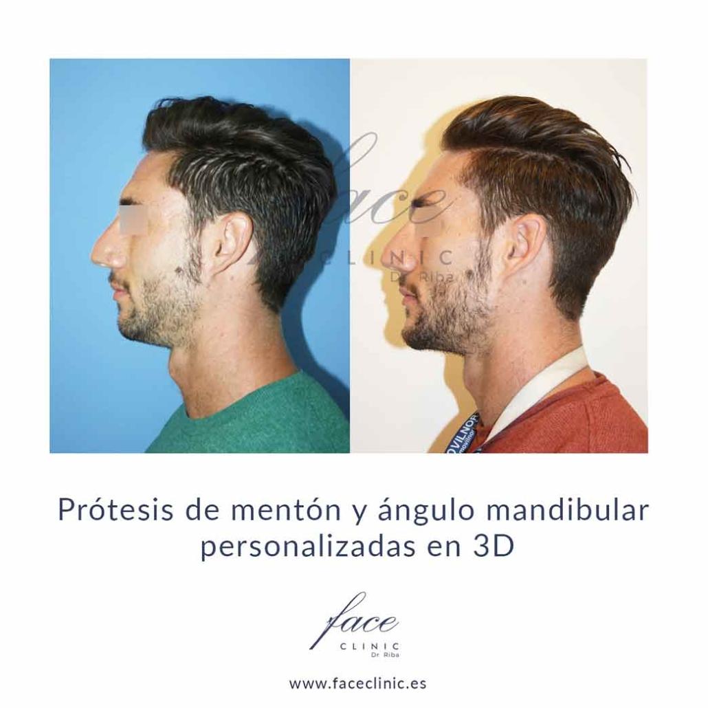Implantes faciales en España