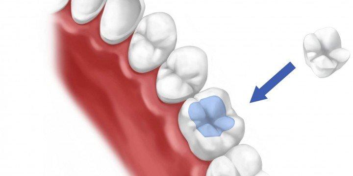 Que son las Incrustaciones dentales