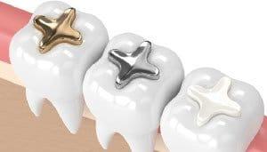 Incrustaciones dentales Madrid