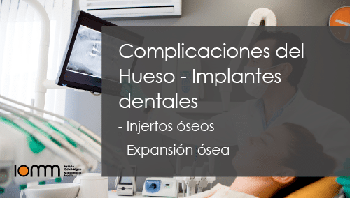 Injerto de Hueso Dental - Madrid, Guadalajara, Toledo