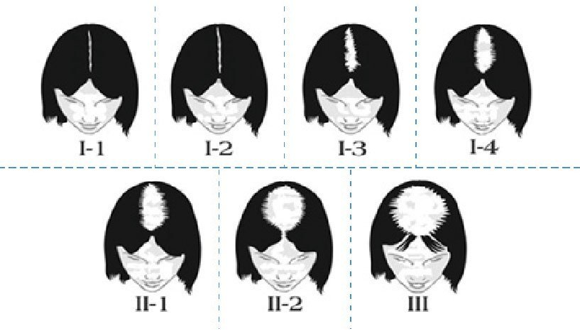Injertos capilares en mujeres según la escala de Ludwig