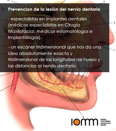 Lesión del nervio dentario inferior dañado
