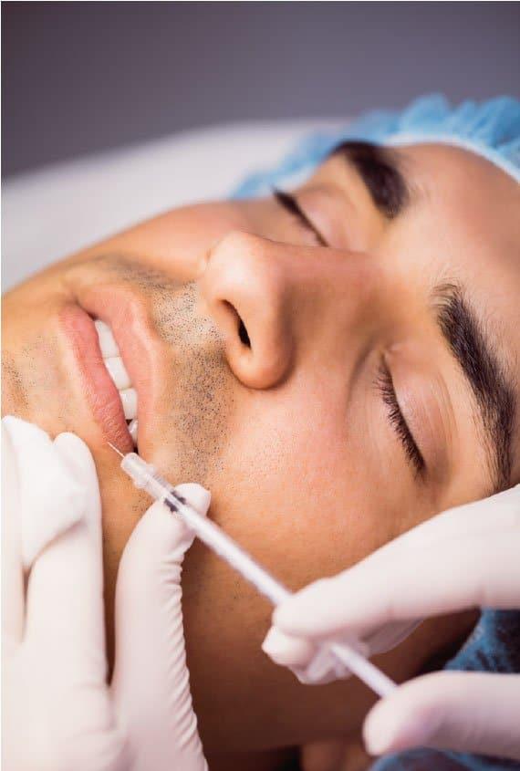 Tratamiento de lipofilling de labios en Madrid