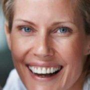 Postoperatorio del Lipofilling Facial