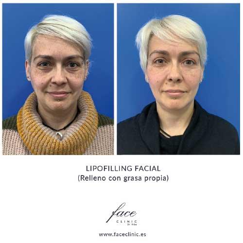 Resultados lipofilling facial