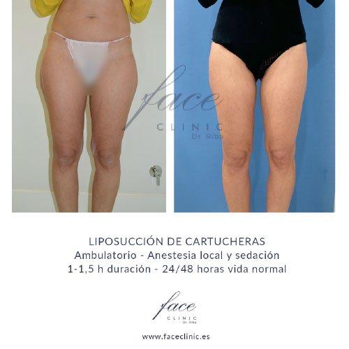 Resultados Liposucción cartucheras