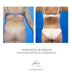 Liposucción de espalda y cintura