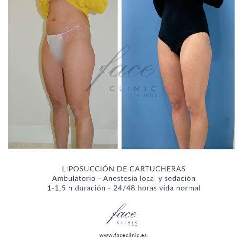 Resultados liposucción - Caso 1b