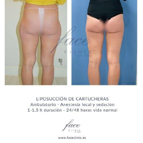 Resultados liposucción - Caso 1c