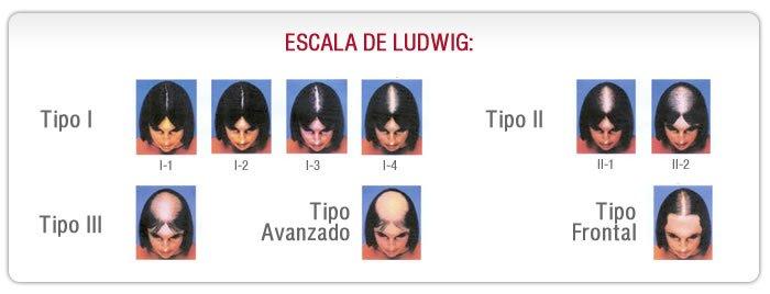 alopecia en la mujer tratamiento