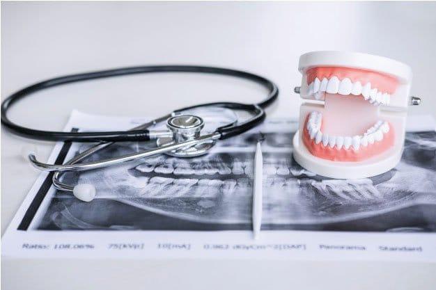 Tratamiento maloclusiones dentales