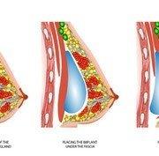 ¿La mamoplastia de aumento debe ser submuscular, subfascial o subglandular?