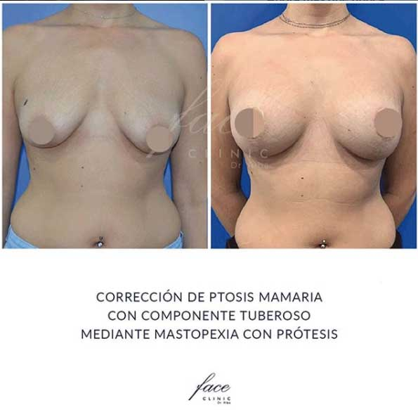 Mastopexia con protesis antes y despues