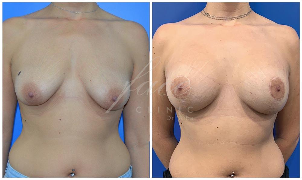 Caso de mastopexia antes y después de la operación - Caso 1