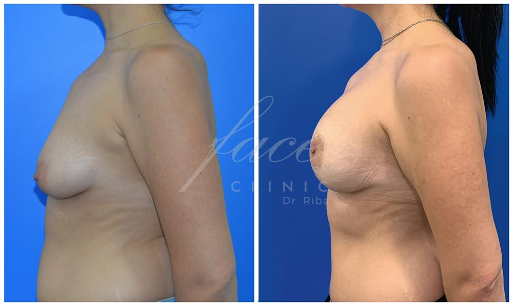 Caso de mastopexia antes y después de la operación - Caso 1a