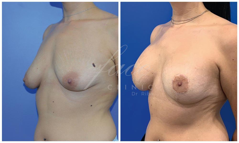 Caso de mastopexia antes y después de la operación - Caso 1b