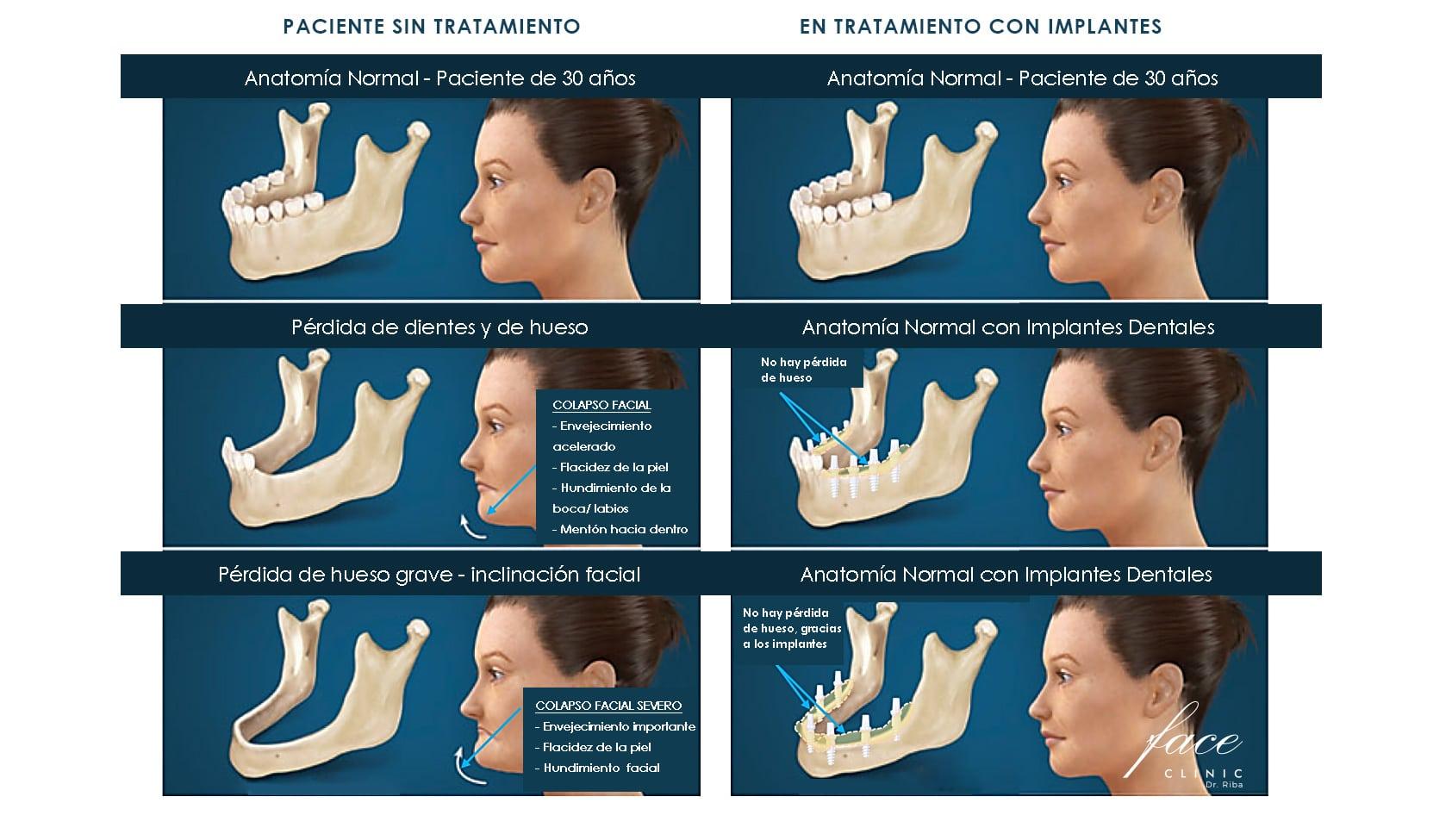 Corrección de las mejillas hundidas en hombres y en mujeres