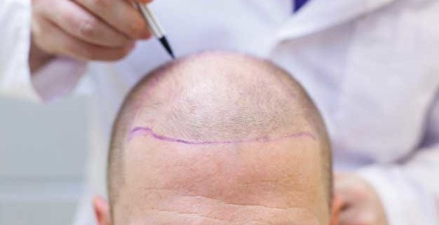 Mejor clínica para ponerse pelo en España