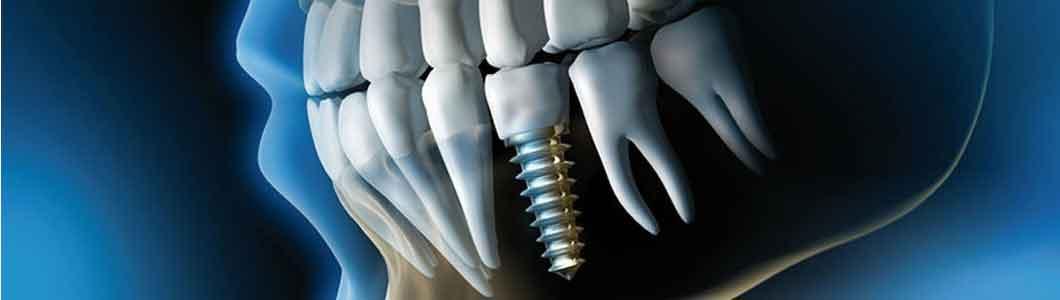 Mejores especialistas en implantes