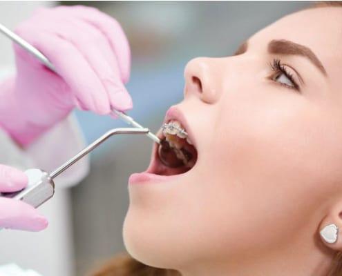 Los microtornillos en Ortodoncia