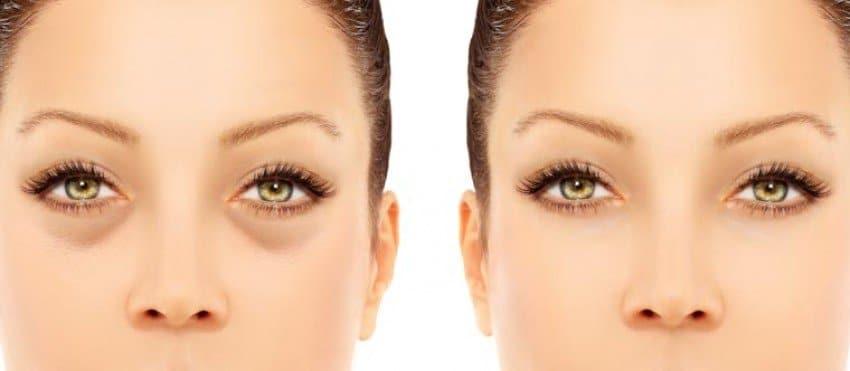 Nanofat para el tratamiento de las ojeras - Face Clinic Madrid
