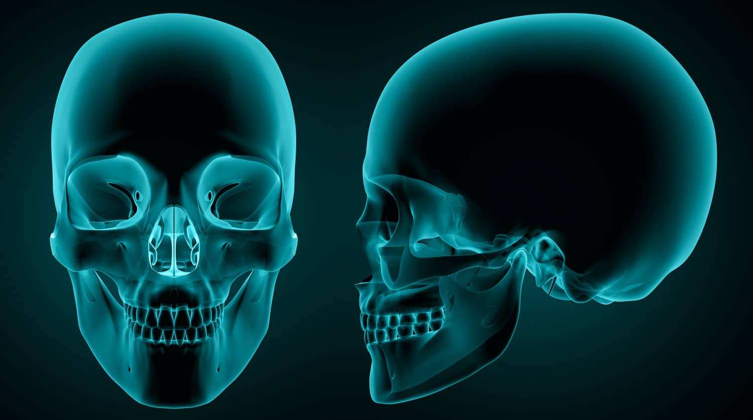 Orthognathic Surgery in Madrid, Spain