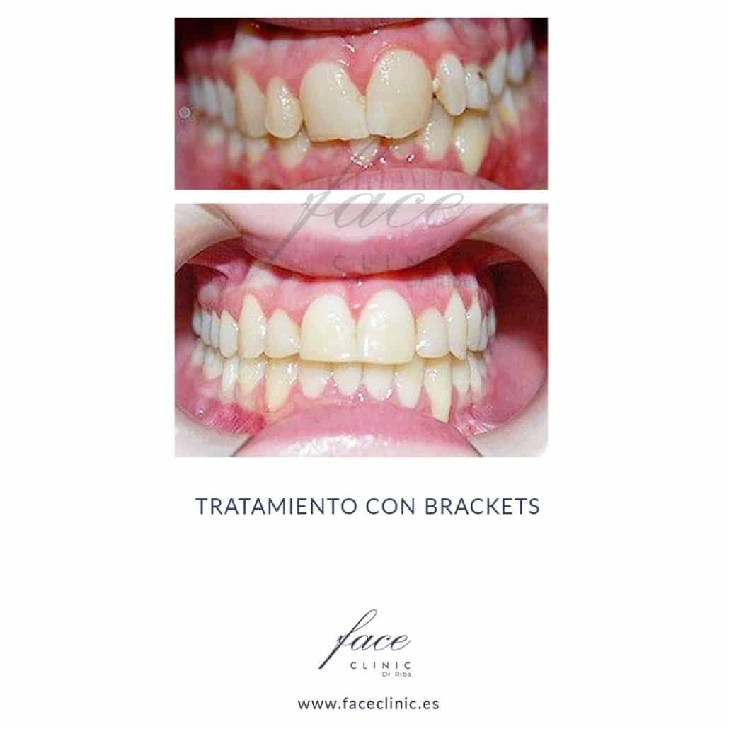 Caso de Ortodoncia en Madrid - Dra. Moya - Caso 8