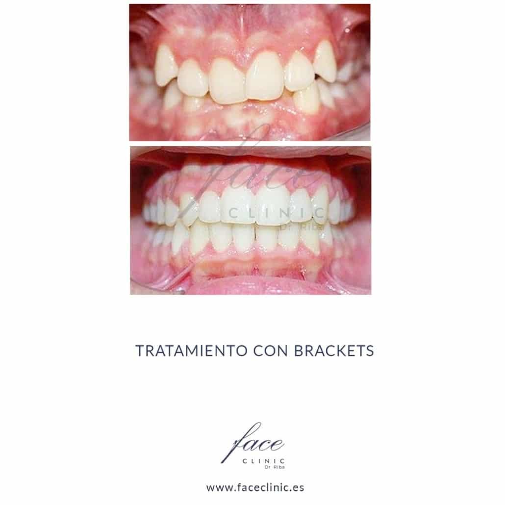 Caso de Ortodoncia en Madrid - Dra. Moya - Caso 3