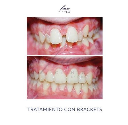 Clínica de Ortodoncia en Huelva - caso 1