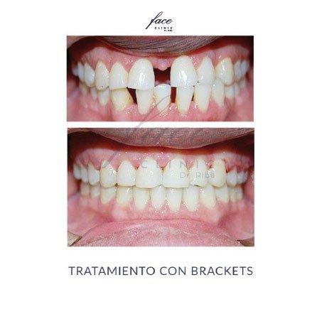 Clínica de Ortodoncia en Huelva - caso 2