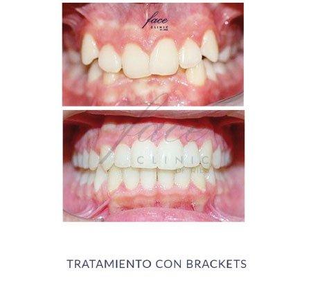 Clínica de Ortodoncia en Huelva - caso 3