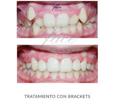 Clínica de Ortodoncia en Huelva - caso 4