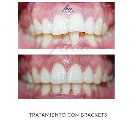 Clínica de Ortodoncia en Huelva - caso 5