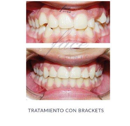 Clínica de Ortodoncia en Huelva - caso 6