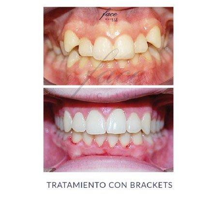 Clínica de Ortodoncia en Huelva - caso 7