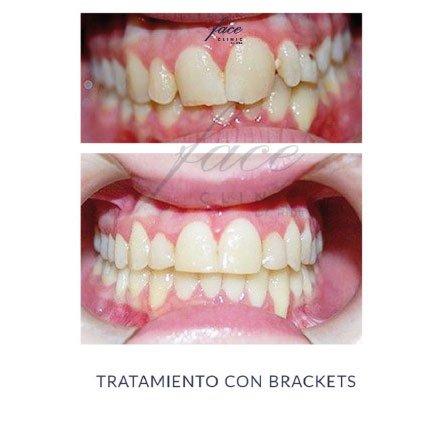 Clínica de Ortodoncia en Huelva - caso 8