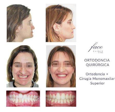 Clínica de Ortodoncia en Huelva - caso 9