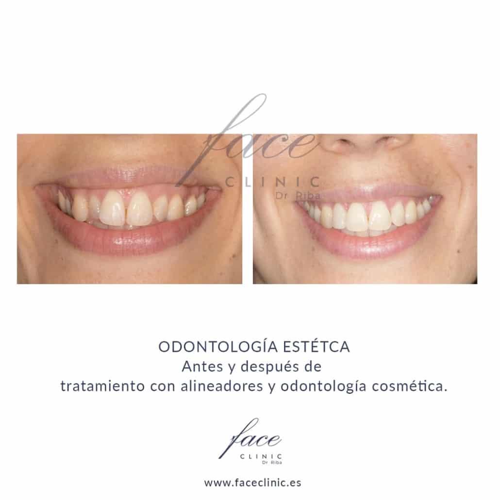 Ortodoncia en Madrid con alineadores antes y despues
