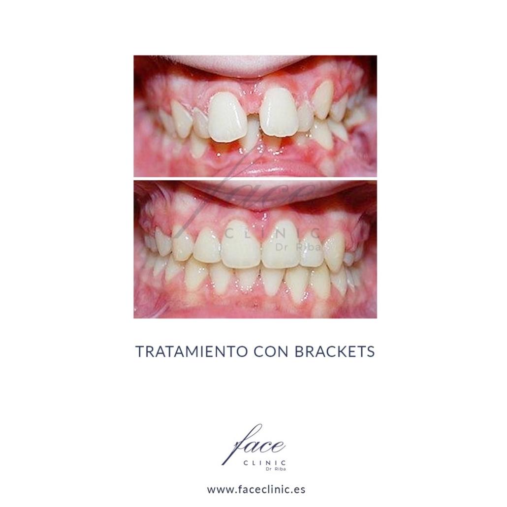 Caso de Ortodoncia en Madrid - Dra. Moya - Caso 1