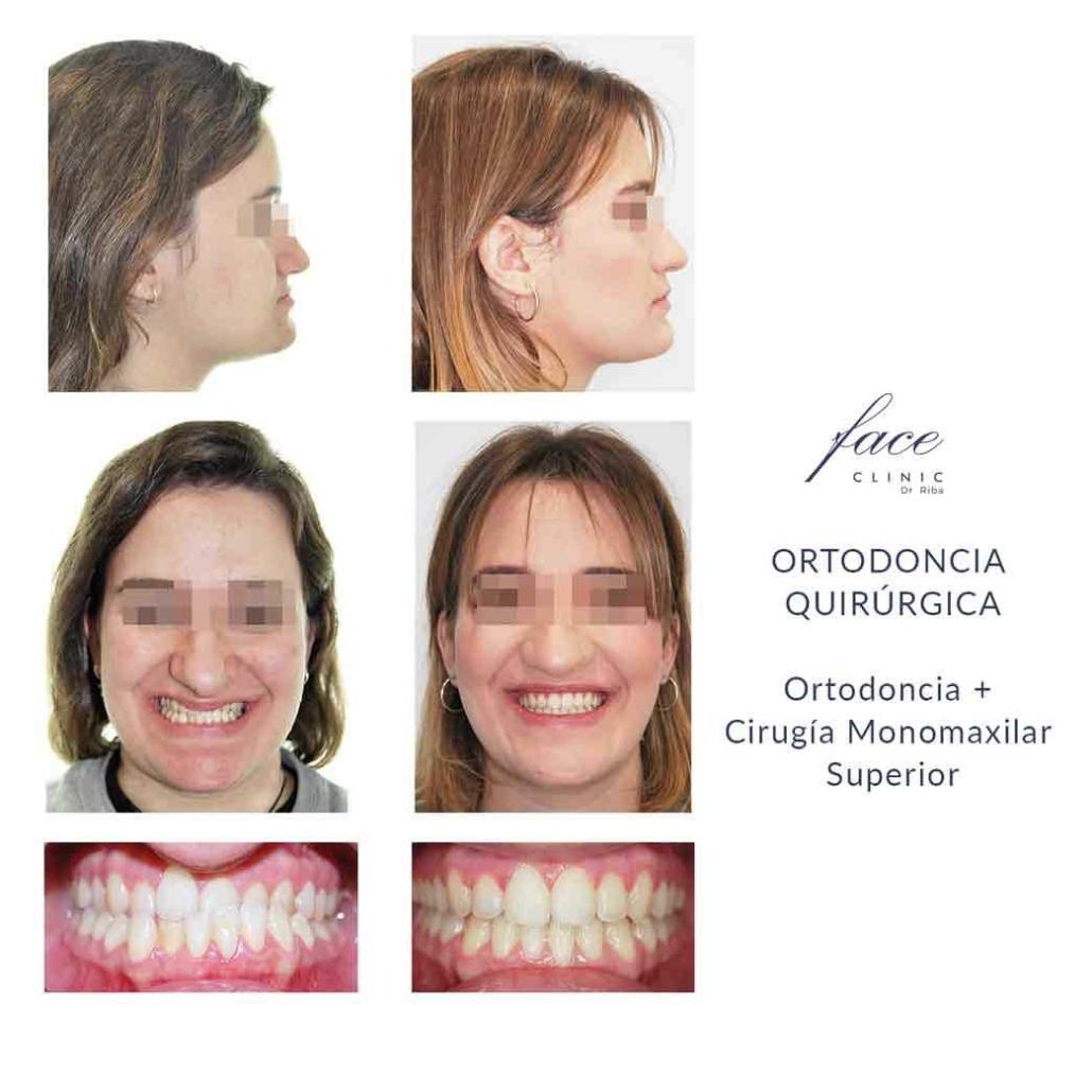 Resultados de ortodoncia quirúrgica