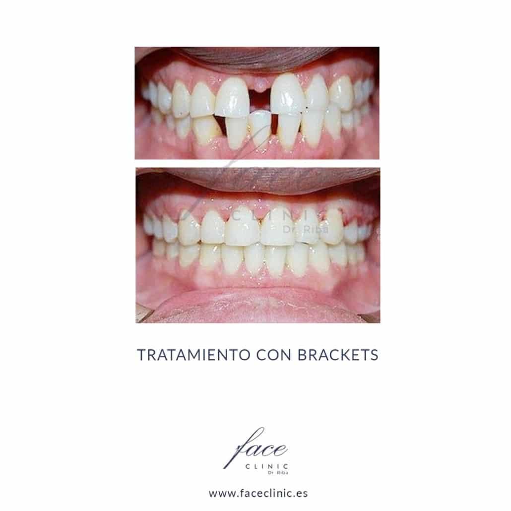 Caso de Ortodoncia en Madrid - Dra. Moya - Caso 2