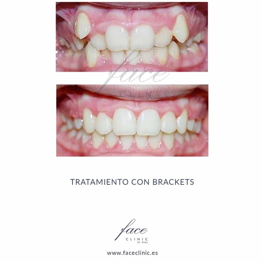 Caso de Ortodoncia en Madrid - Dra. Moya - Caso 4