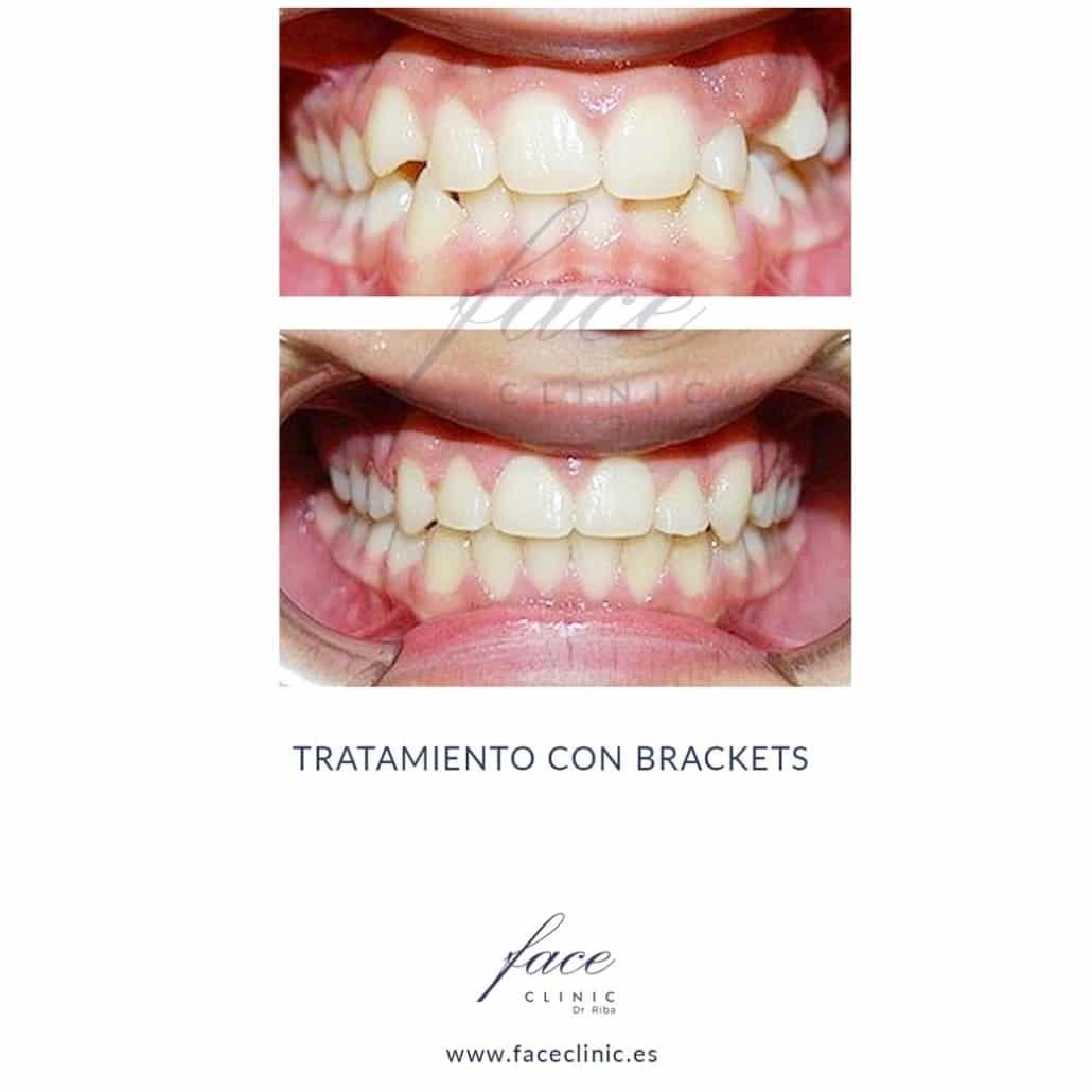Caso de Ortodoncia en Madrid - Dra. Moya - Caso 6