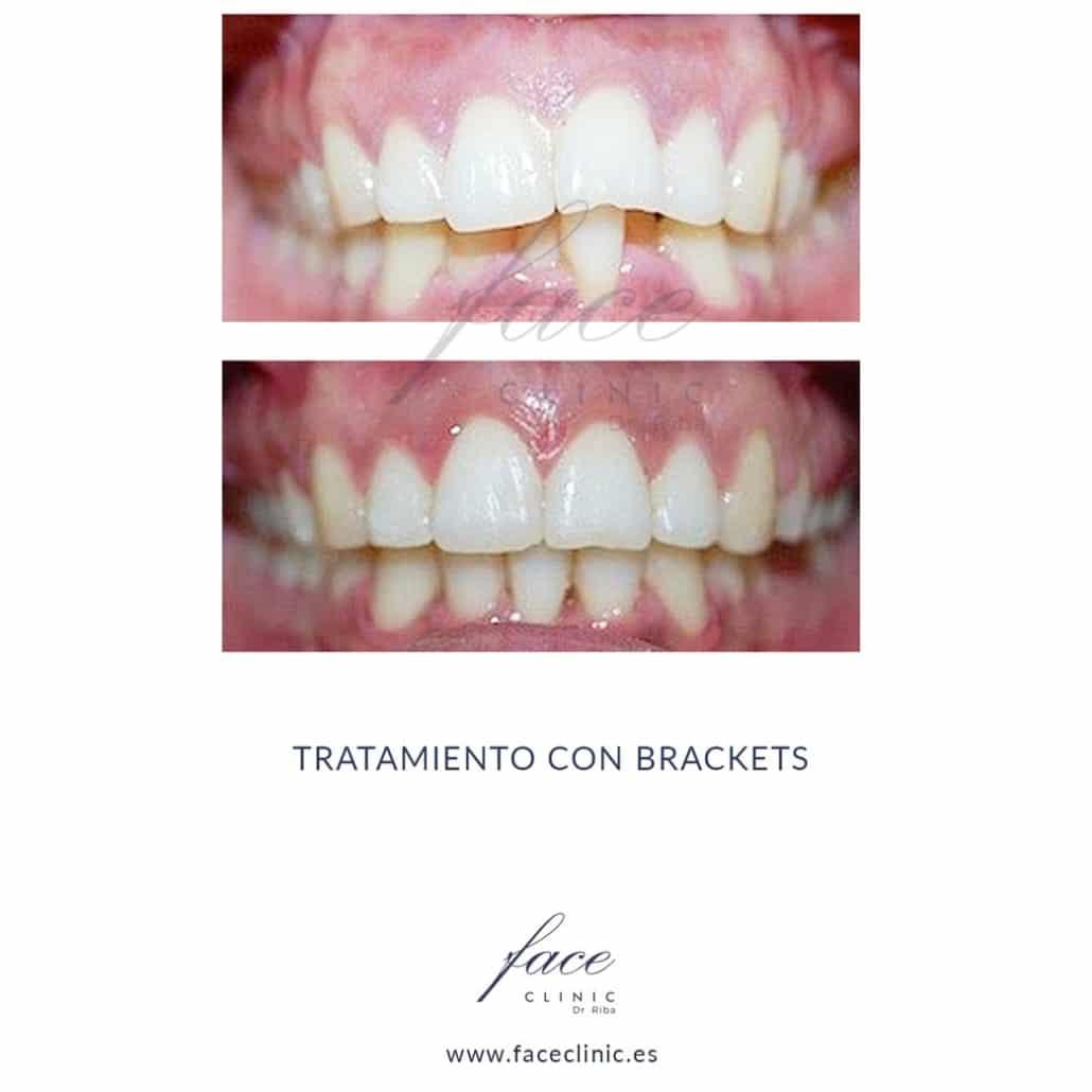 Caso de Ortodoncia en Madrid - Dra. Moya - Caso 5