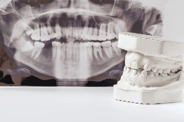 Que es la Osteotomia Sagital Alveolar