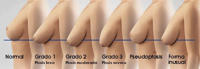 Solución a los pechos caídos tras embarazo y lactancia
